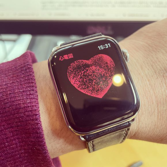 AppleWatch_ECG