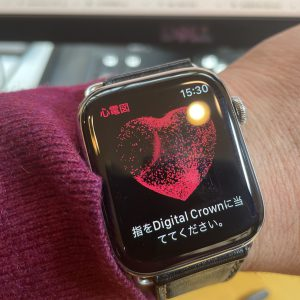 applewatch-ecg-ap